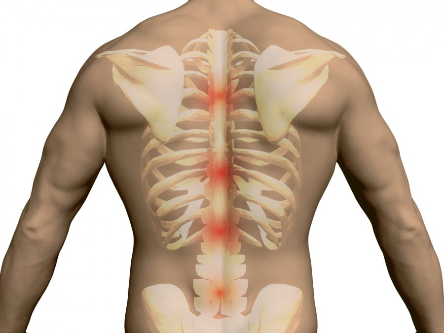 Orthopedic Surgeon bone functioning back