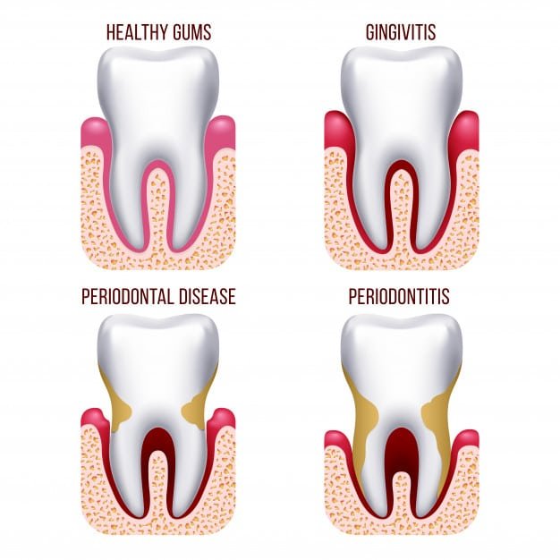 How to Regrow Bone Loss From Periodontal Disease Naturally
